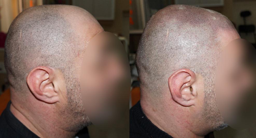 Haare entfernen ungarn